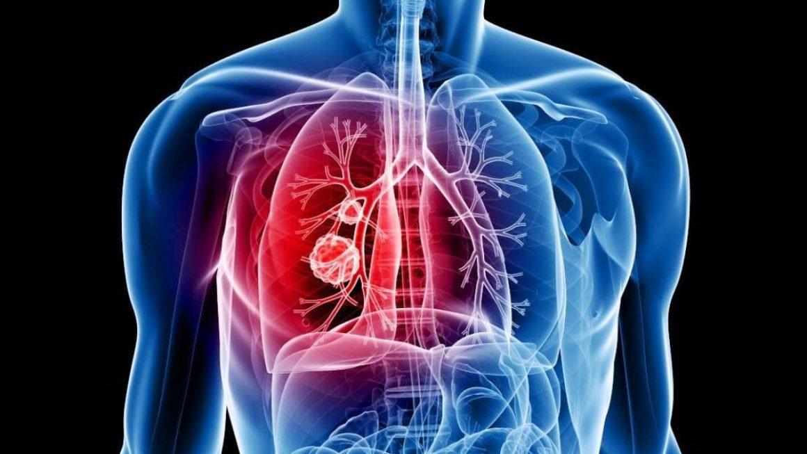akciger kanseri belirtileri1