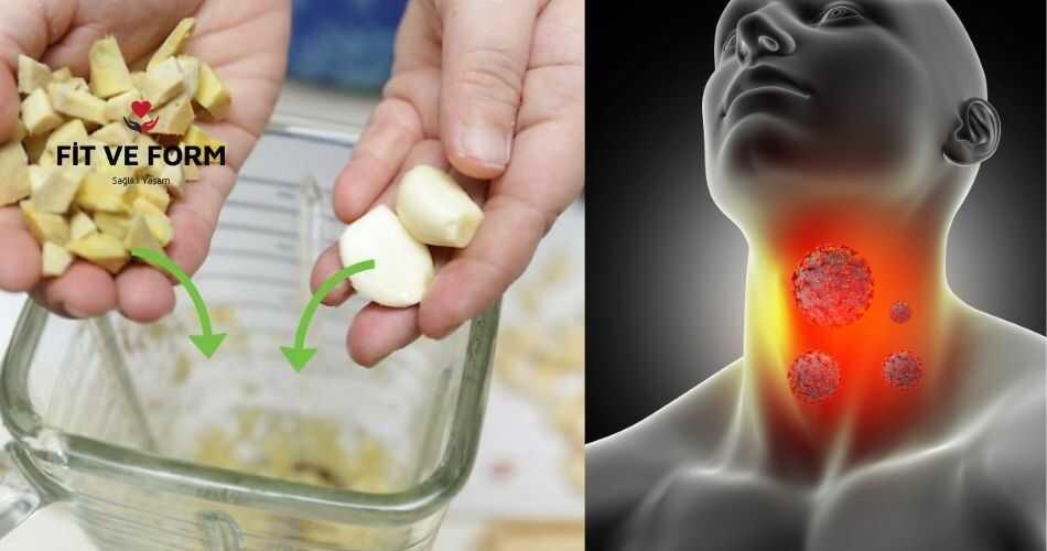 Boğaz Ağrısına Doğal Antibiyotik