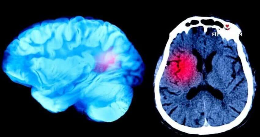 Beyin Anevrizması