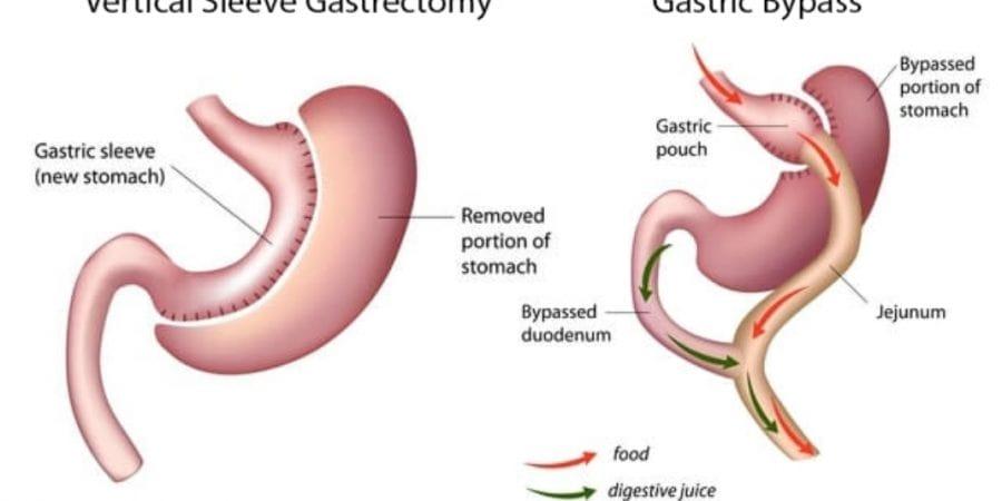 Gastrik Bypass ameliyati